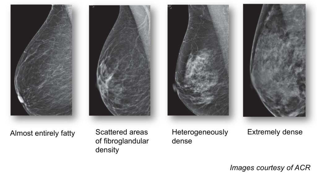 Breast density on mammogram