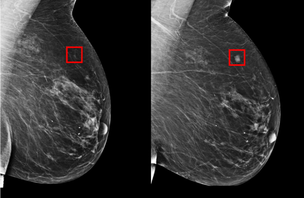 AI can detect breast cancer 5 yrs earlier than doctors