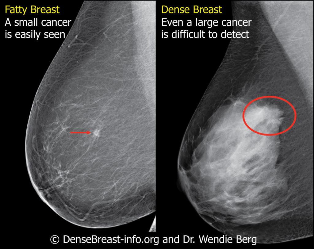 Dense breasts mammogram