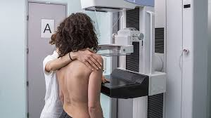 mammogram breast cancer detection